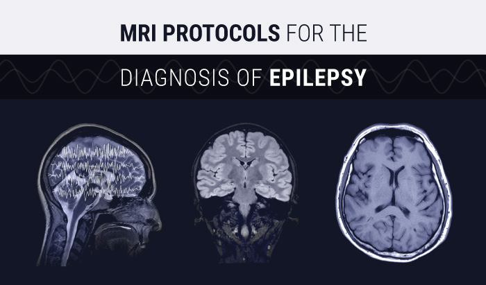 MRI Protocols for the Diagnosis of Epilepsy