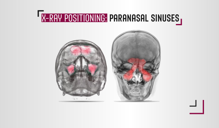 paranasal sinus x-ray views
